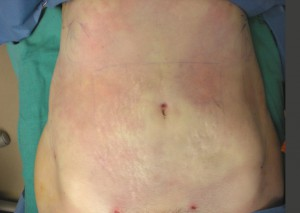 after smartlipo