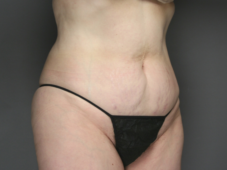 smart-lipo-after1
