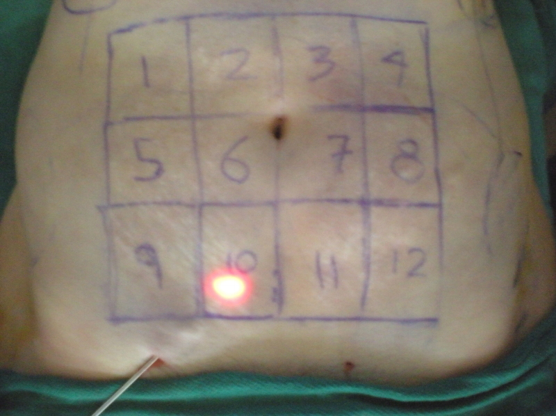 smartlipo-preop-markings