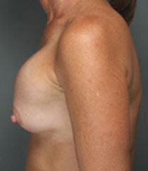 Breast augmentation bottom out