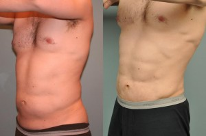 smartLipo-los-angeles