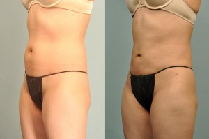 smartlipo-before-after-LA