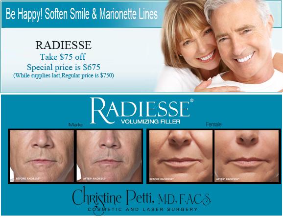 Radiesse_3