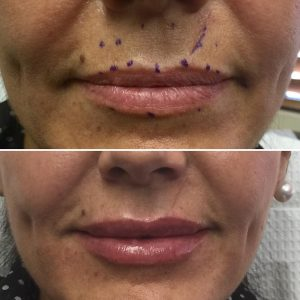 JUVEDERM VOLBELLA for Lip Augmentation in Los Angeles CA